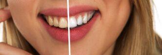 jak dbać o piękny uśmiech